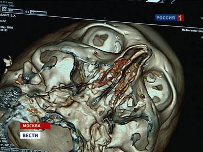 http://news.mail.ru/pic/56/3d/696547_400_300_source.jpg